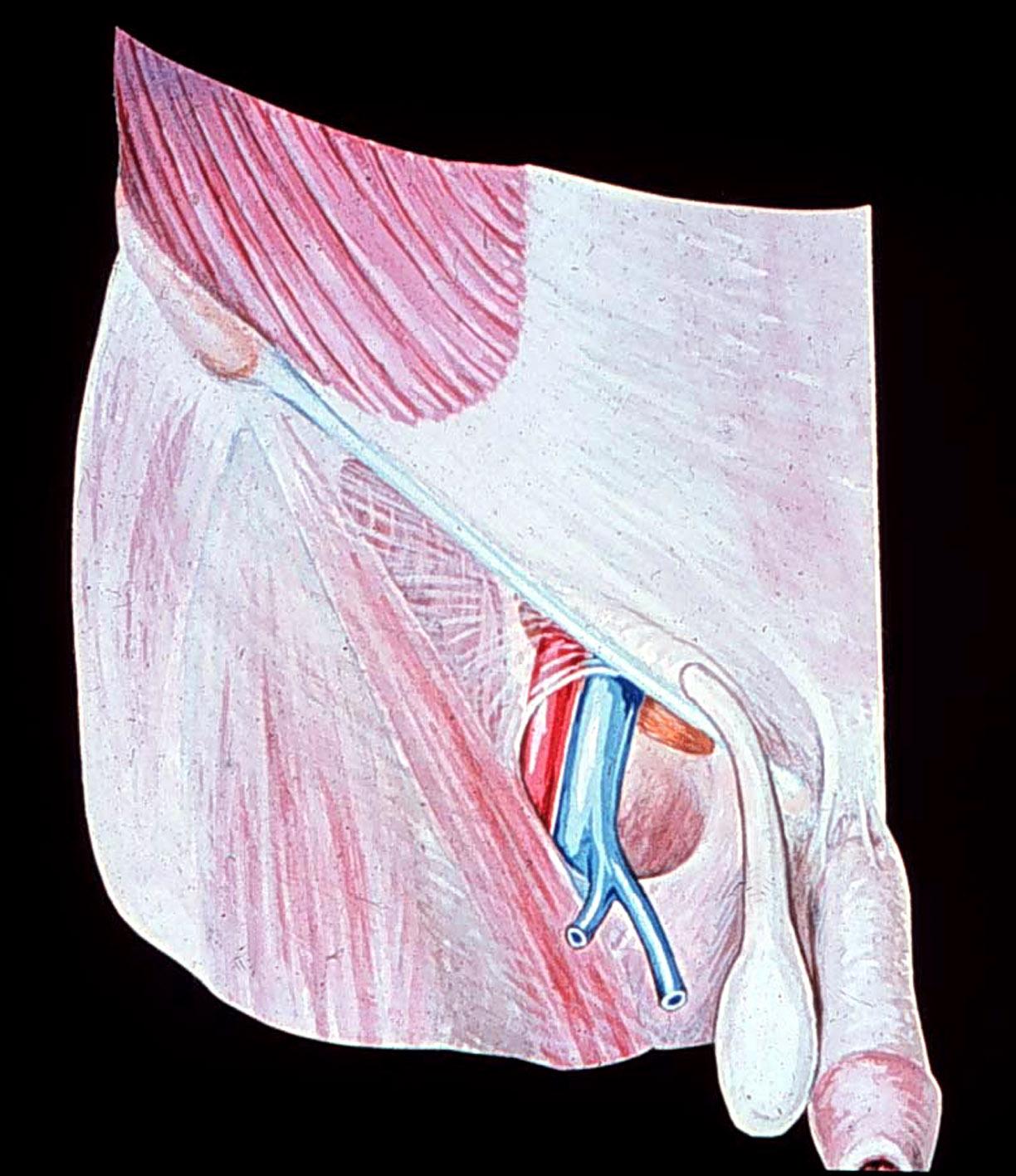 femorale liesbreuk